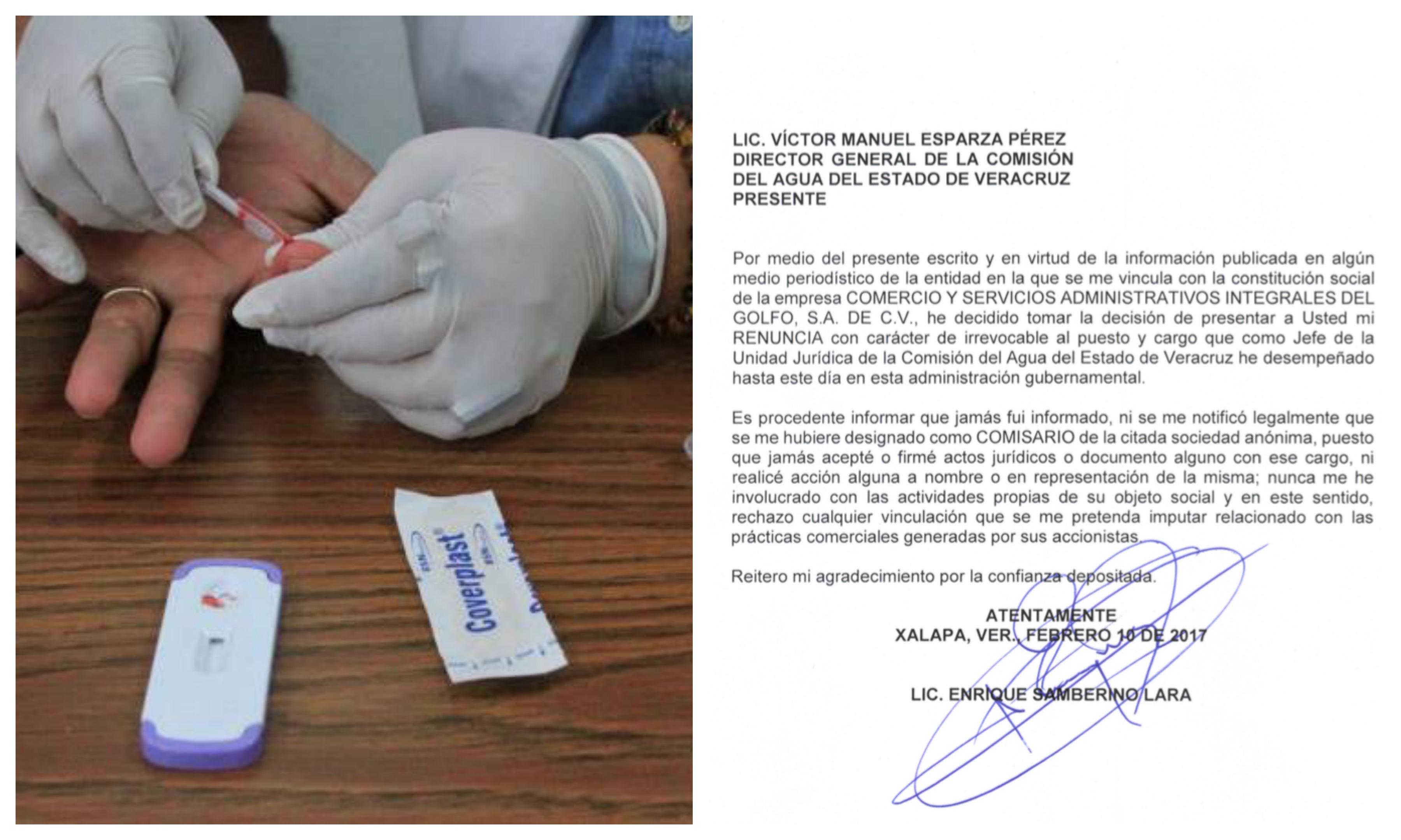 Por test falsos de VIH dimite jurídico de Aguas en Veracruz