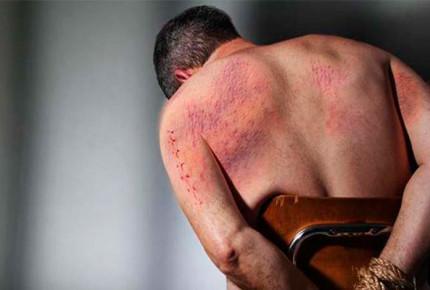 Suman 56 denuncias por tortura en lo que va de 2017: CNDH