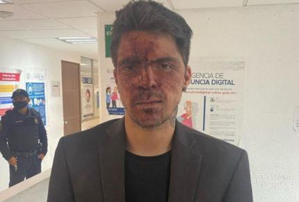 César D'Alessio acusa que el priista Arturo Montiel lo golpeó