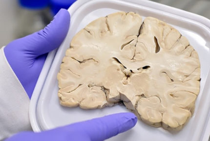 UNAM crea Banco de Cerebros